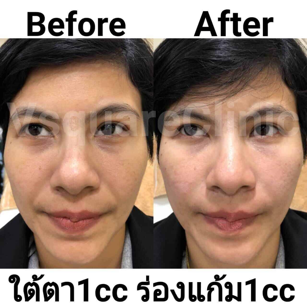 ตัวอย่างรีวิว ผลการรักษาด้วยฟิลเลอร์ ใต้ตา+ร่องแก้ม 1 cc