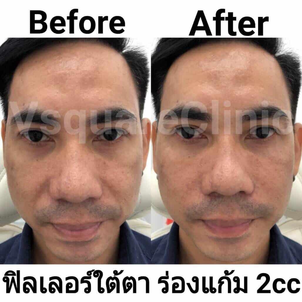 ตัวอย่างรีวิว ผลการรักษาด้วยฟิลเลอร์ ใต้ตา+ร่องแก้ม 2 cc