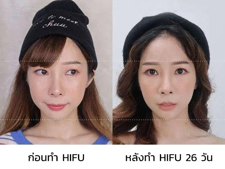 Hifu รีวิว