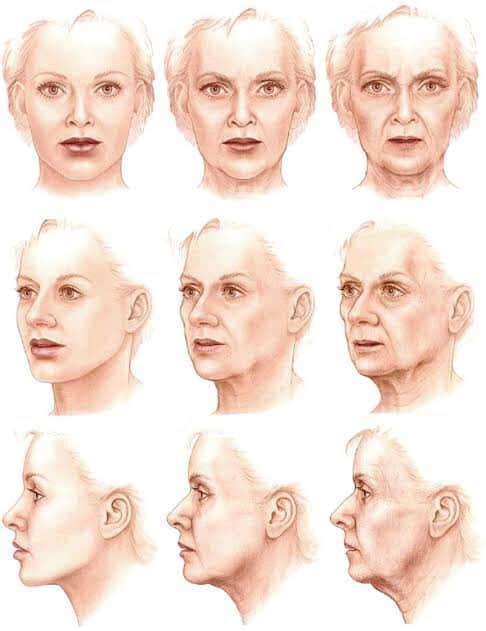 รูปเปรียบเทียบตามช่วงอายุ เพื่ออธิบายการยุบตัวของบริเวณขมับ