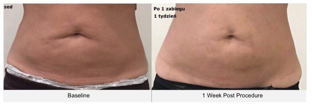 ตัวอย่างรีวิวผลการรักษา cellulite บริเวณหน้าท้องด้วยเครื่อง Ultraformer III-2