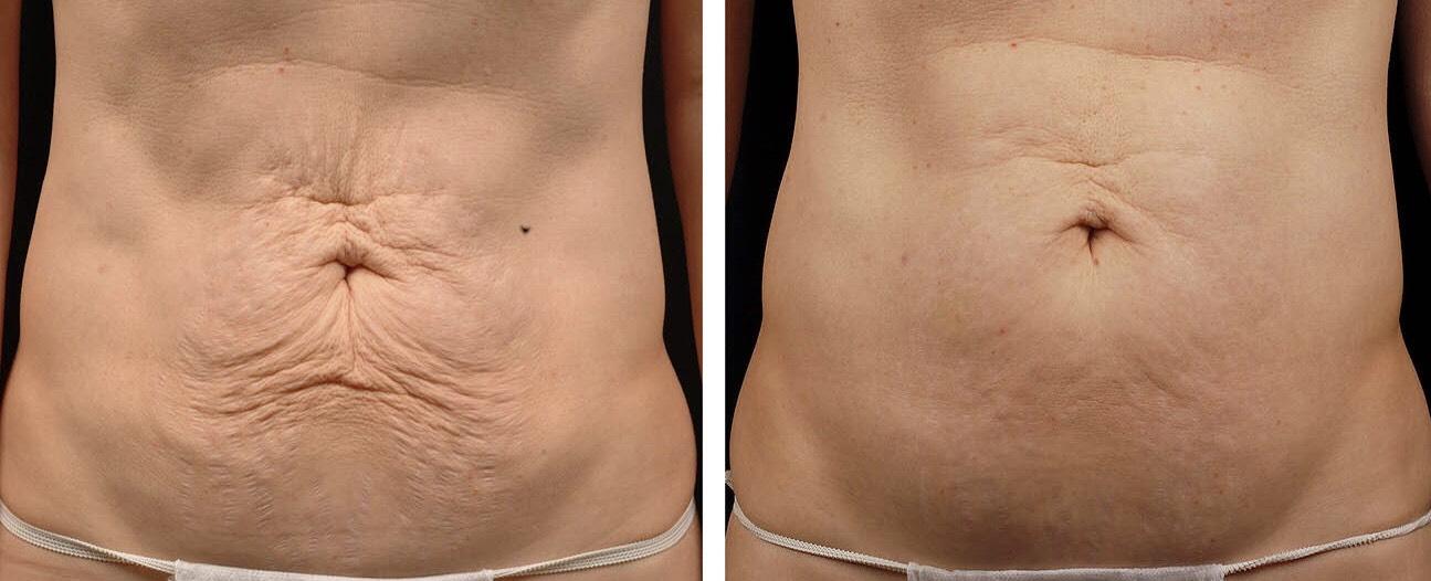ตัวอย่างรีวิวผลการรักษาบริเวณหน้าท้องด้วย Thermage FLX for body