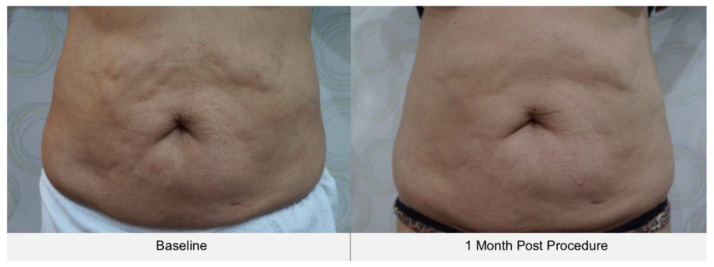 ตัวอย่างรีวิวผลการรักษา cellulite บริเวณหน้าท้องด้วยเครื่อง Ultraformer III