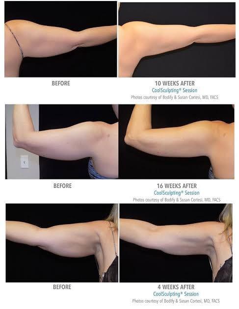 ตัวอย่างรีวิวผลการรักษาด้วยเครื่อง CoolSculpting บริเวณแขน