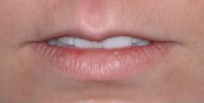 ผ่าตัดทำปากบางมาแล้วบางเกินไป เติมฟิลเลอร์ปากแก้ได้ไหม
