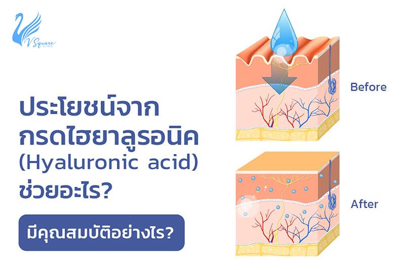 ไฮยาลูรอน-Hyaluronic-Acid
