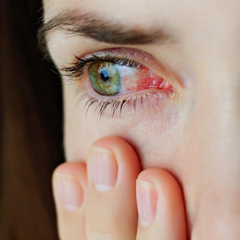 hyaluronic-acid-บรรเทาอาการตาแห้ง