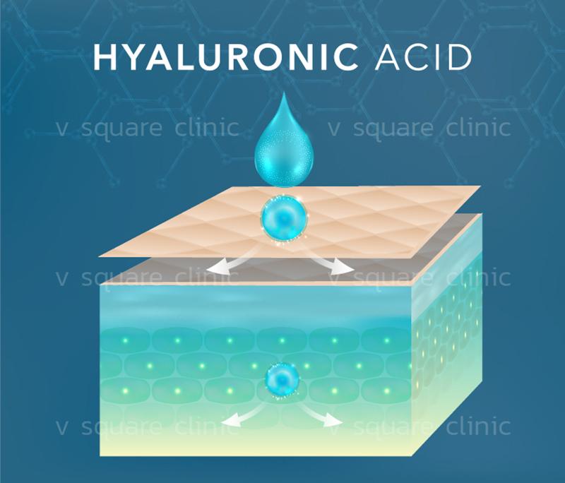 hyaluronic-acid-ฟื้นฟูผิว