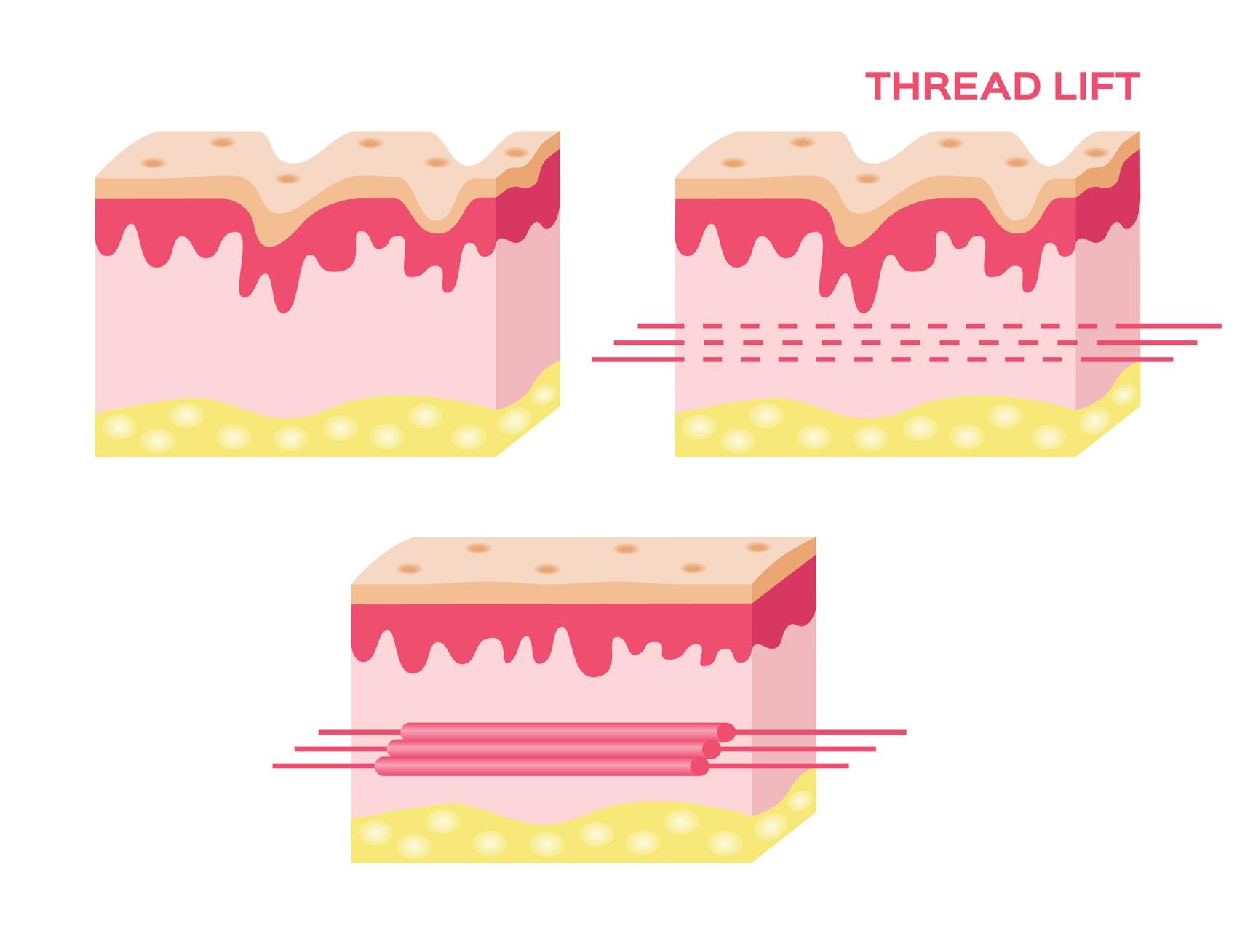 การร้อยไหมสามารถกระตุ้นการสร้าง elastin