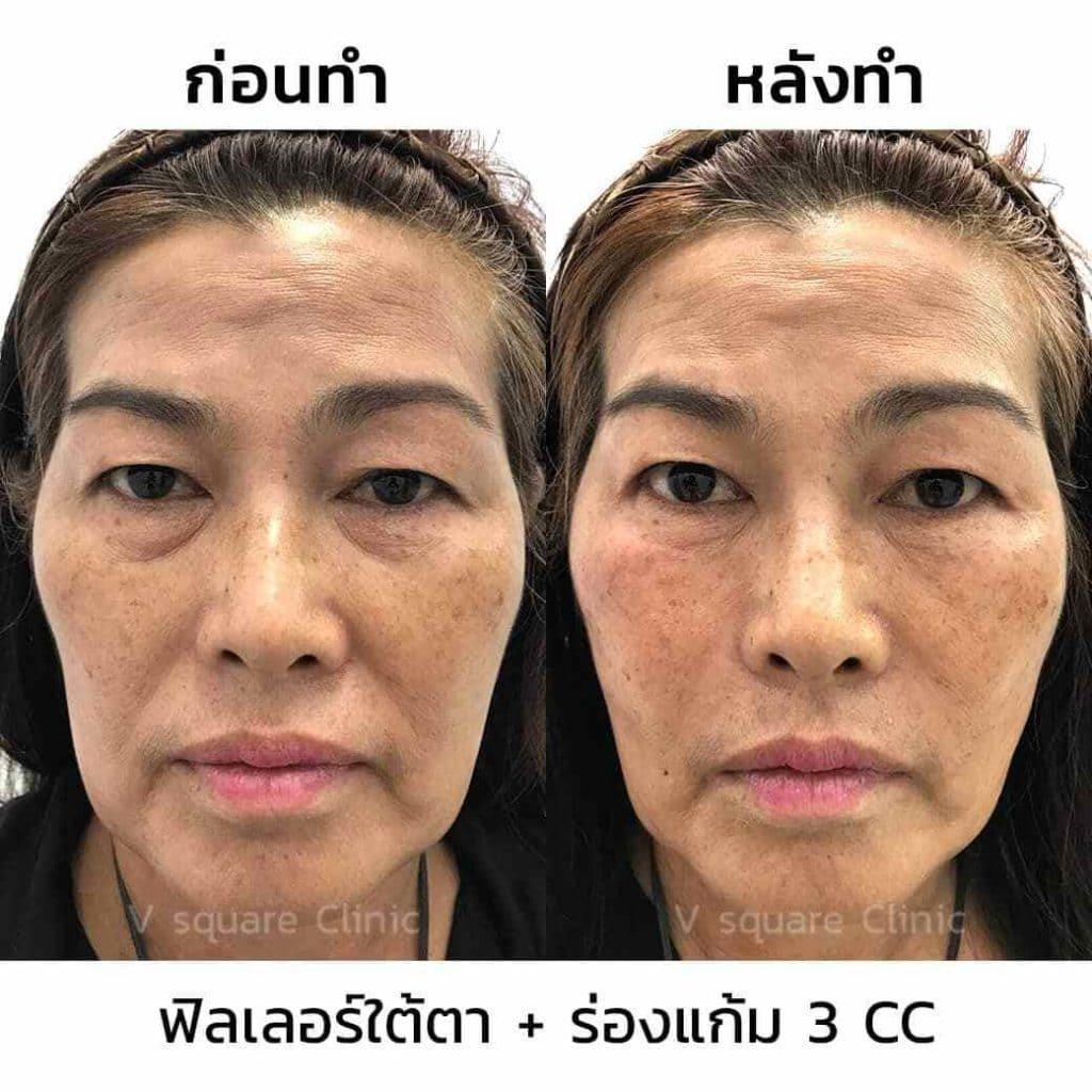 ตัวอย่างรีวิว ผลการรักษาด้วยฟิลเลอร์ใต้ตา ร้องแก้ม 3 cc