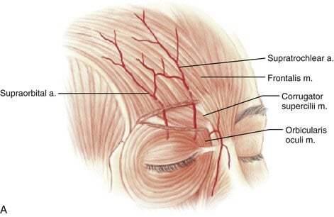 ฟิลเลอร์หน้าผาก VS ผ่าตัดเสริมหน้าผาก