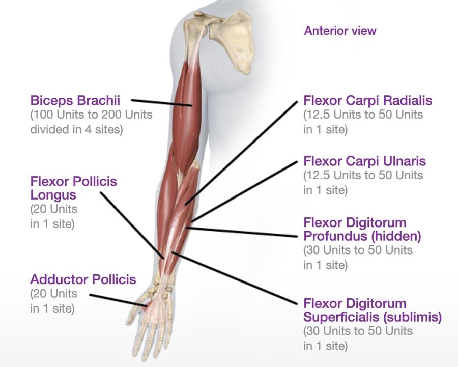 การใช้ปริมาณฉีดโบท็อกลดกล้ามแขน