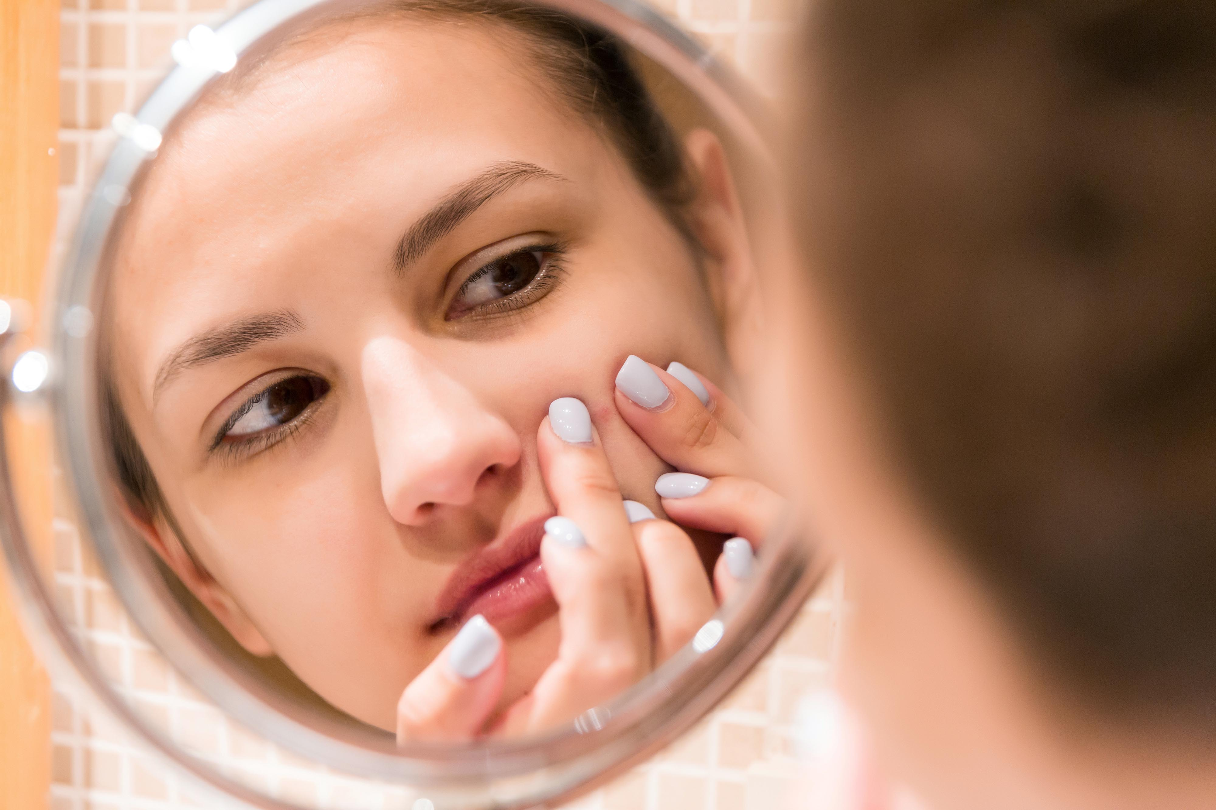 Young,Girl,Squeezes,Pimple,On,The,Fer,Face,In,Front