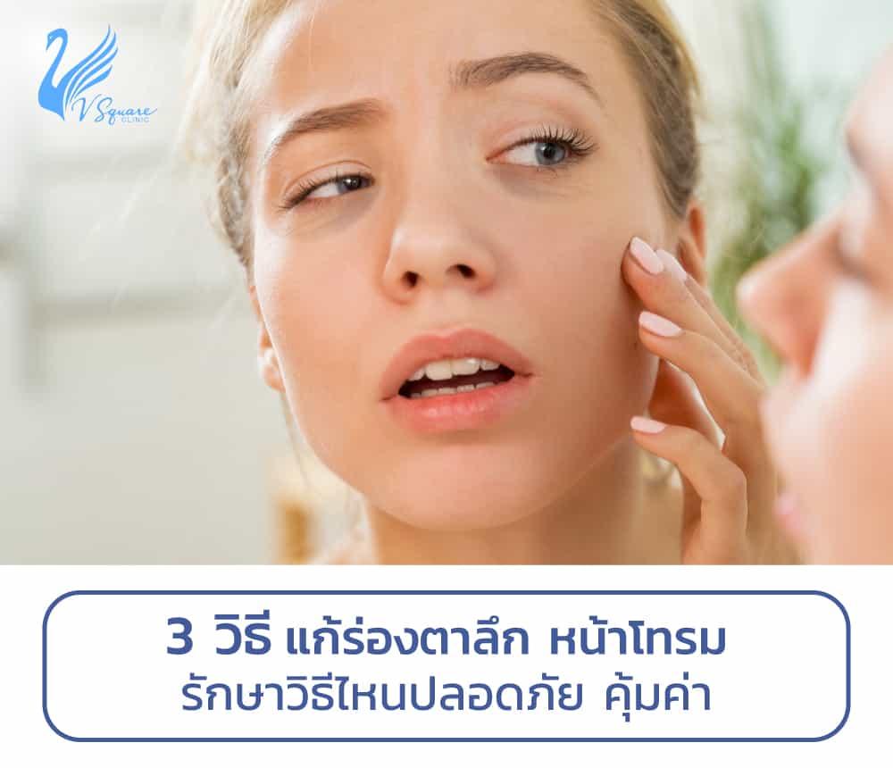 3วิธีแก้ไขร่องตาลึก
