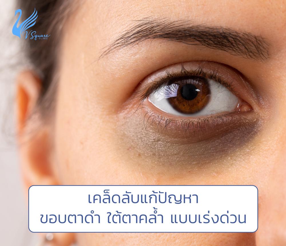 ขอบตาดำมาก