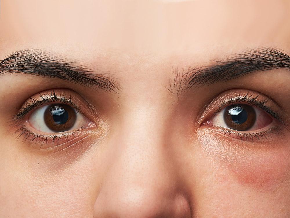 รอยใต้ตา รอบดวงตาดำคล้ำ