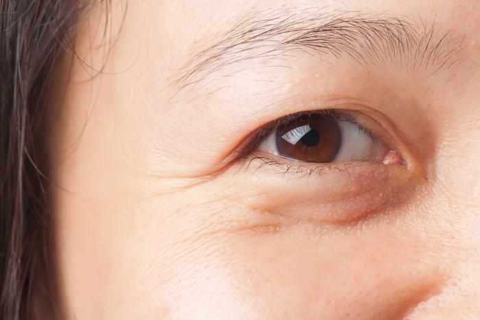 ริ้วรอยใต้ตา เกิดจากอะไร