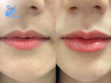 รีวิวฉีดฟิลเลอร์ปาก-ให้รูปปากทรงสวย-อวบอิ่ม-370X277