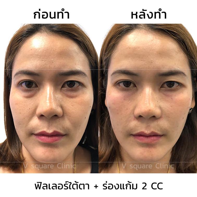 รีวิว-ฟิลเลอร์ร่องแก้ม-2-CC-ผู้หญิง