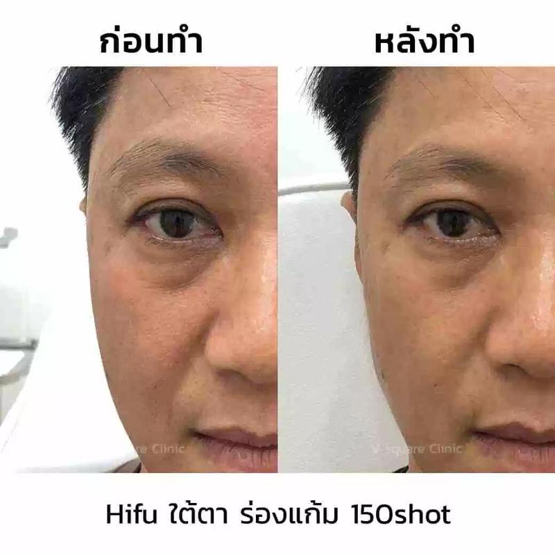 ลดริ้วรอยใต้ตาด้วย Hifu Ultrafomer III