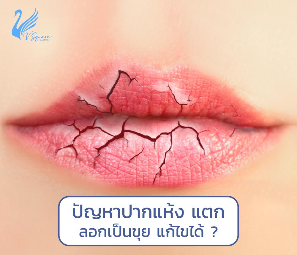 ปากแห้ง