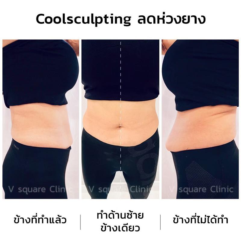 รีวิว-CoolSculpting-ลดห่วงยาง