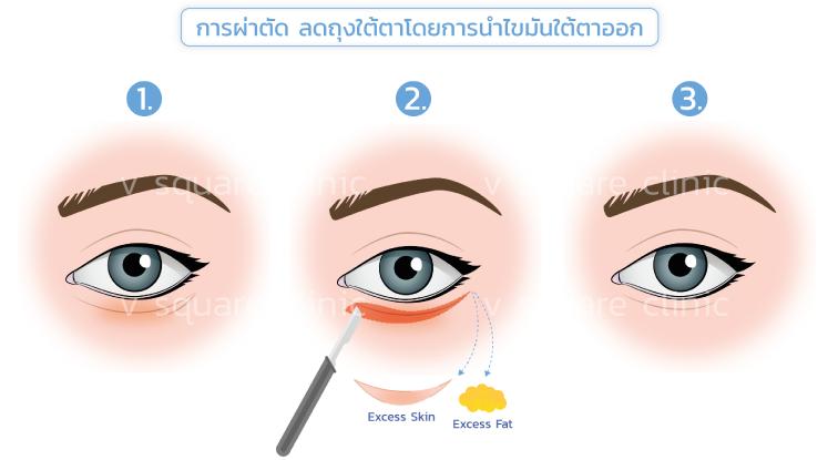 การผ่าตัด-ลดถุงใต้ตา