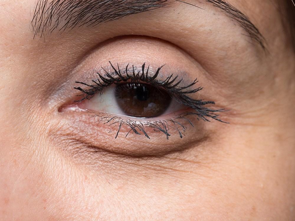 ถุงใต้ตาคล้ำ-รอบดวงตาดำคล้ำ