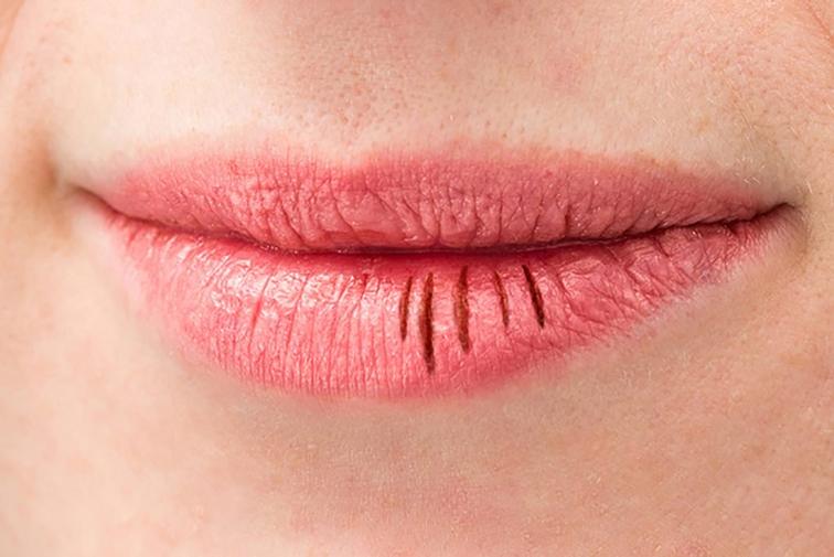 ริบฝีปากแตก-ปากเป็นร่อง
