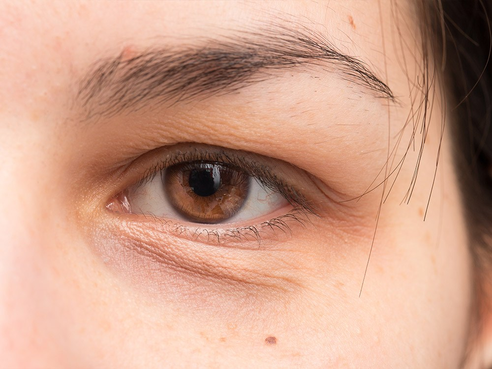 ร่องน้ำตา-ริ้วรอยใต้ตา-รอยเหี่ยวใต้ตา