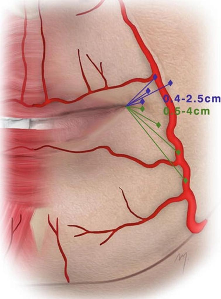 เส้นเลือดฝอยขนาดเล็กบนริมฝีปาก