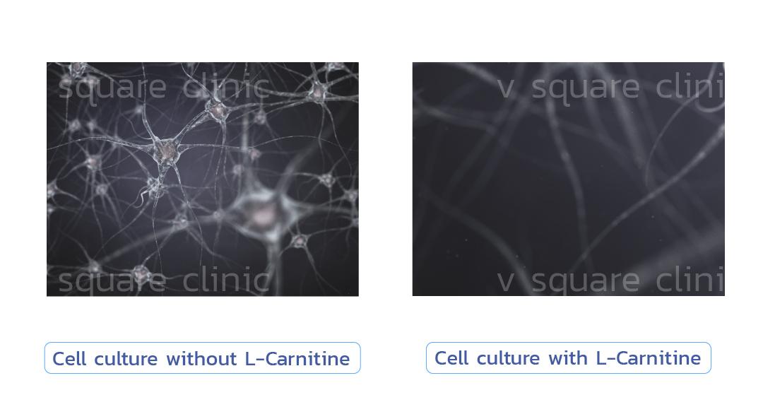L-carnitine-ทำให้ร่างกายเปลี่ยนไขมันเป็นพลังงาน-(fat-burn)