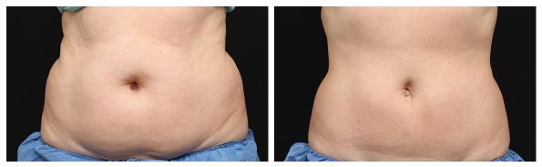 รีวิว-Coolsculpting-สลายไขมันหน้าท้อง