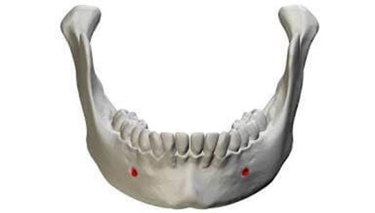 ฟิลเลอร์คาง-mental-foramen