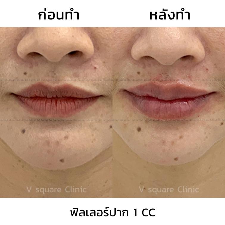 รีวิวปากกระจับ-Restylane-Refyne-1-cc