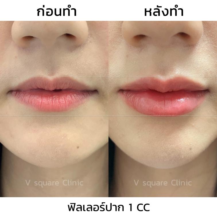 รีวิวปากกระจับ-Restylane-volyme-1-cc