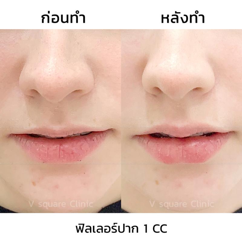 รีวิวฟิลเลอร์ปาก-1-cc ใต้ตา-2-cc