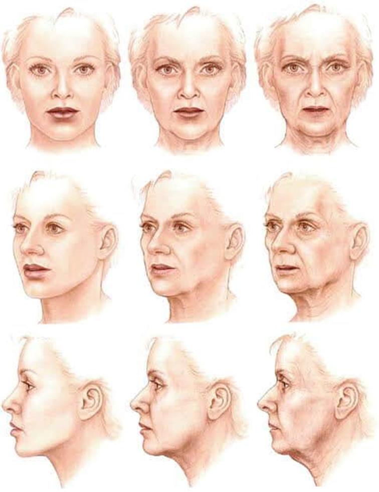 รูปเปรียบเทียบตามช่วงอายุ-เพื่ออธิบายการยุบตัวของบริเวณขมับ
