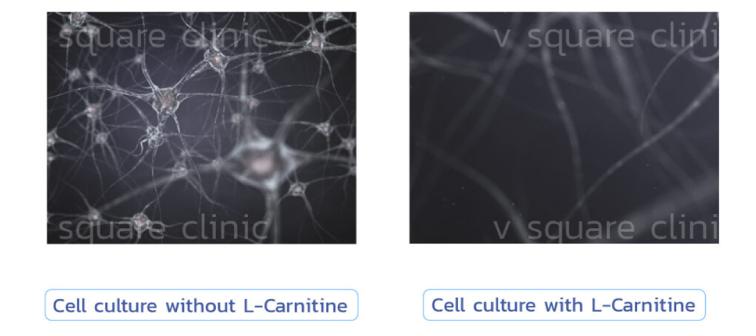 ในเมโสแฟตมี-L-carnitine