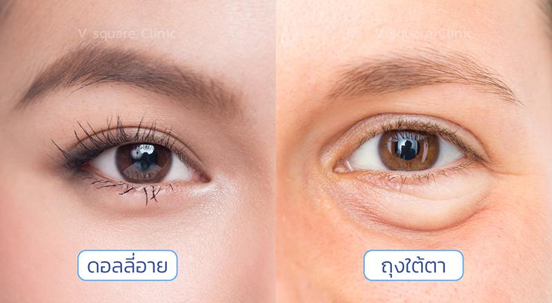 เปรียบเทียบดอลลี่อายและถุงใต้ตา