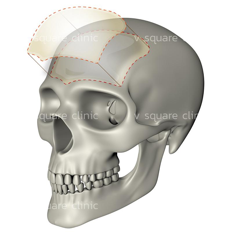การผ่าตัดเสริมหน้าผากแบบใช้แผ่นซิลิโคน