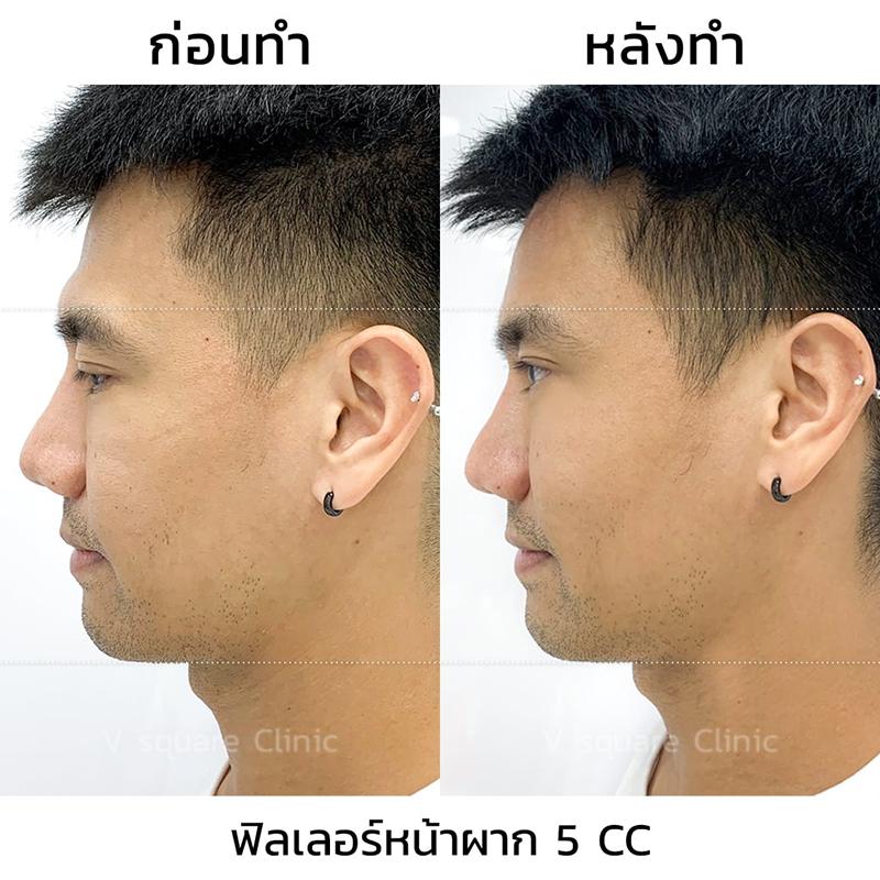 รีวิว-ฟิลเลอร์หน้าผาก-5cc-2