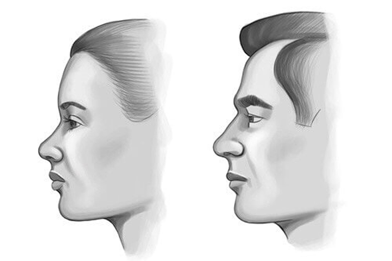 ลักษณะหน้าผากผู้ชายผู้หญิง
