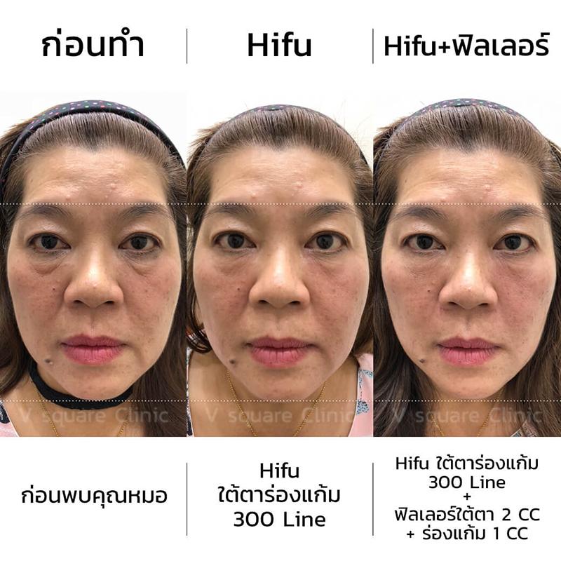 hifu ใต้ตาร่องแก้ม-300-Line+ฟิลเลอร์ใต้ตา-2-CC+ร่องแก้ม-1-CC
