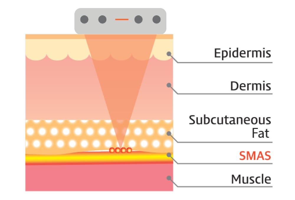 ชั้นเนื้อเยื่อ-SMAS-มีประโยชน์อย่างไร