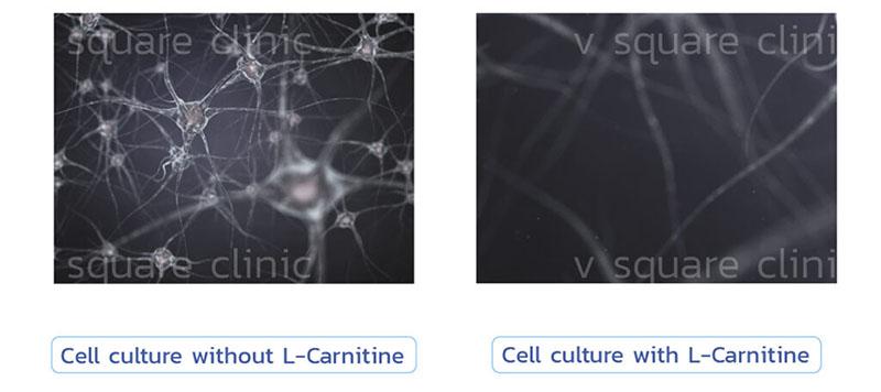 เมโสแฟต L-carnitine